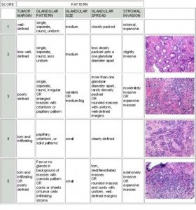 prostata22 280x300 - Pathology of Prostate Cancer