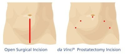 open-surgical-incision-da-vinci-prostatectomy-incision-robotic-assisted-laparoscopic-radical-prostatectomy-prostate-treatment-options-australia-queensland-gold-coast-the-prostate-clinic-min