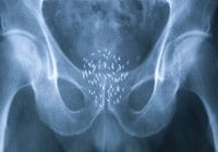 prostate-cancer-treatments-low-dose-radiotherapy-xray-after-seed-insertion-confirming-position-gold-coast-australia-the-prostate-clinic-min