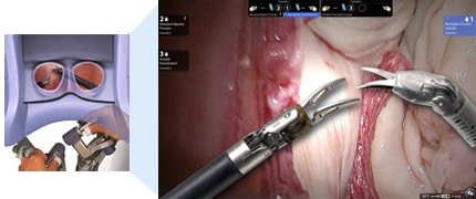 robotic-assisted-laparoscopic-radical-prostatectomy-prostate-treatment-options-australia-queensland-gold-coast-the-prostate-clinic-min